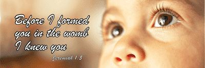 As Many Of You Know This Site Is Dedicated To Honoring The Unborn Christ  Child And Promoting The Gospel Of Life. So Sometimes When You Visit Our  Blog We ...